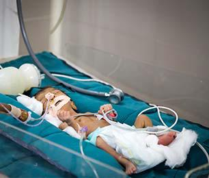 Shrimad Rajchandra Neonatal Intensive Care Unit (NICU)
